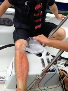 Jellyfish sting First Aid Afloat at Sea