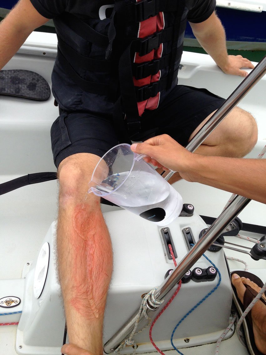 first aid afloat jellyfish stings safe skipper boating safety